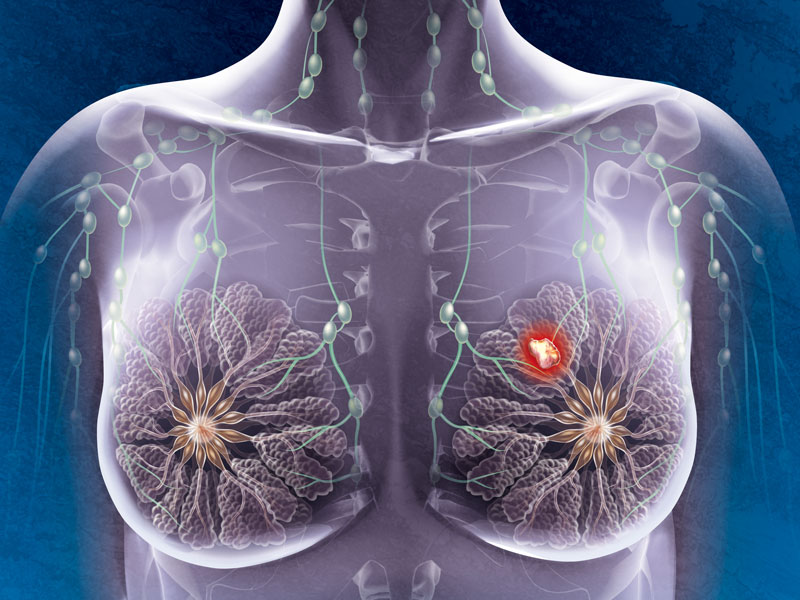 Cancer du sein | Top Santé
