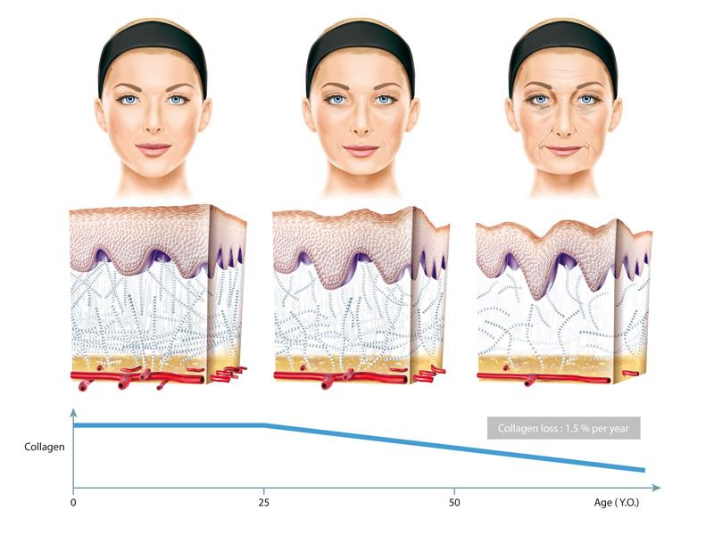 Les mécanismes du vieillissement de la peau