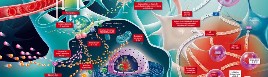 illustration-medicale-didactique-scientifique-AVC-AIT-accident-vasculaire-cerebral