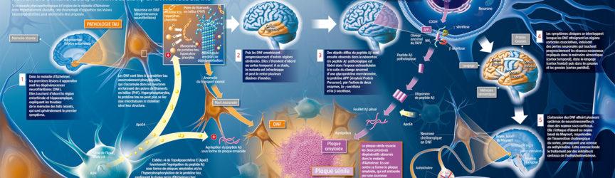 illustration-medicale-scientifique-didactique-alzheimer-cerveau-neurone