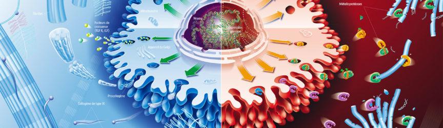 illustration-medicale-scientifique-didactique-arthrose