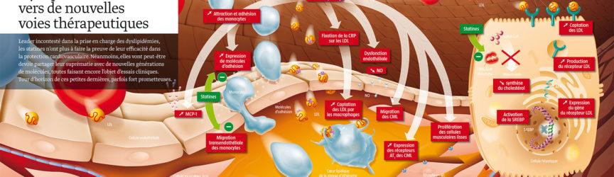 illustration-medicale-scientifique-didactique-dyslipidemies