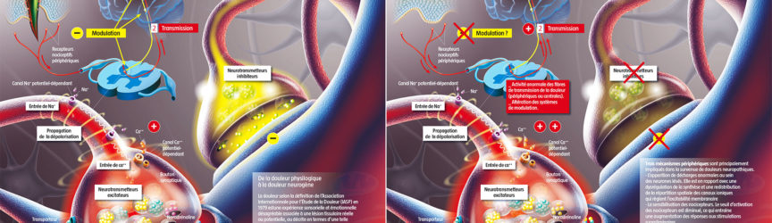 illustration-medicale-scientifique-didactique-neuropathie