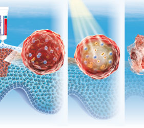 illustration-medicale-scientifique-3D-peau-cancer-melanome-metvix-02