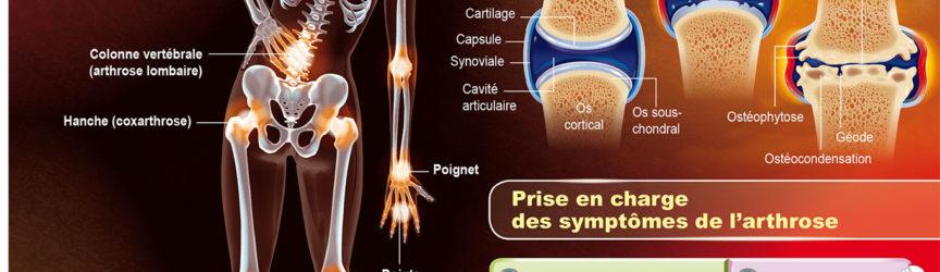 illustration-medicale-scientifique-arthrose-articulations