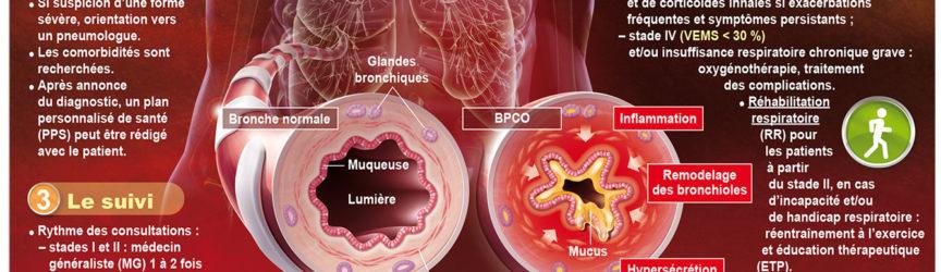 illustration-medicale-scientifique-BPCO