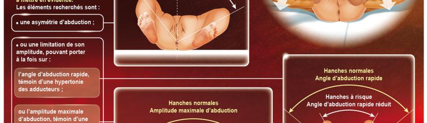 illustration-medicale-scientifique-depistage-luxation-hanche