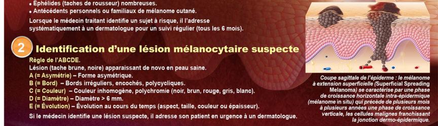 illustration-medicale-scientifique-melanome-peau-cancer