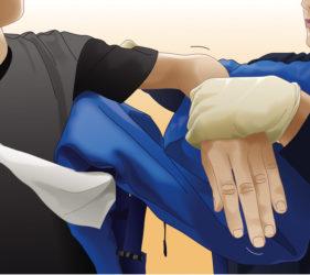 illustration-medicale-scientifique-secourisme-jsp-pose-attelle-06